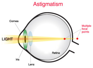 Color Contacts With Astigmatism Correction